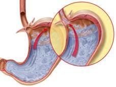 Rossz lehelet gyomor sérv, Felnőtt pinwormok kezelésére